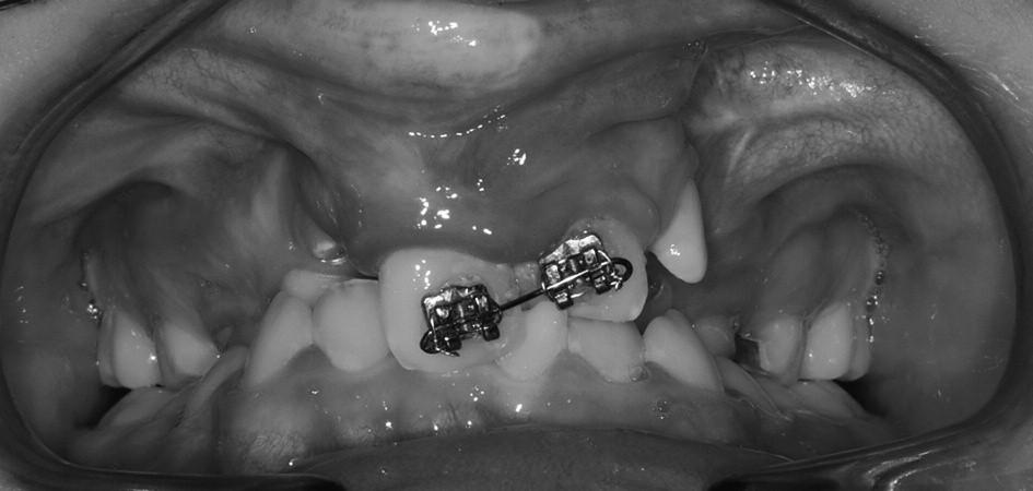 Smíšený chrup pacienta s oboustranným celkovým rozštěpem, zub 21 prořezal do zákusu, na zubech 11 a 21 je nasazen parciální fixní aparát.