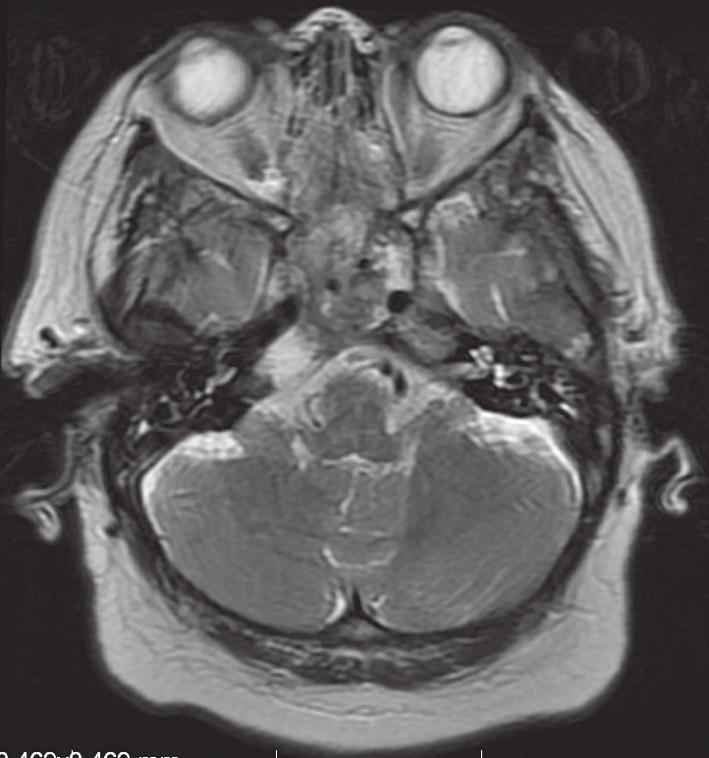 Obr. 3b. Po operační MR, axiální řez, T2 vážení. Stav po subtotální endoskopické endonazální resekci.