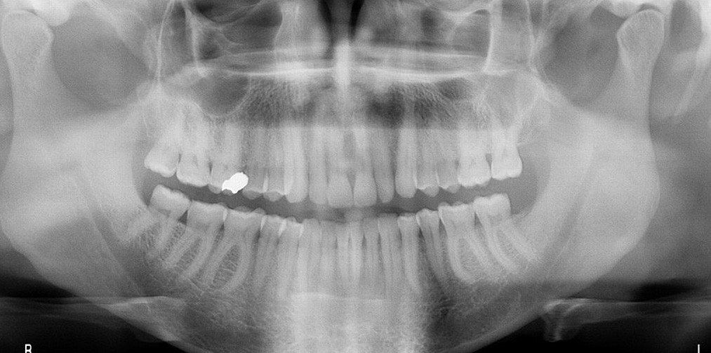 Fig. 1. Panoramic x-ray demonstrating normal findings in a patient complaining of unbearable dental pain.