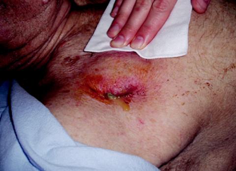Infekce v kapse kardiostimulátoru