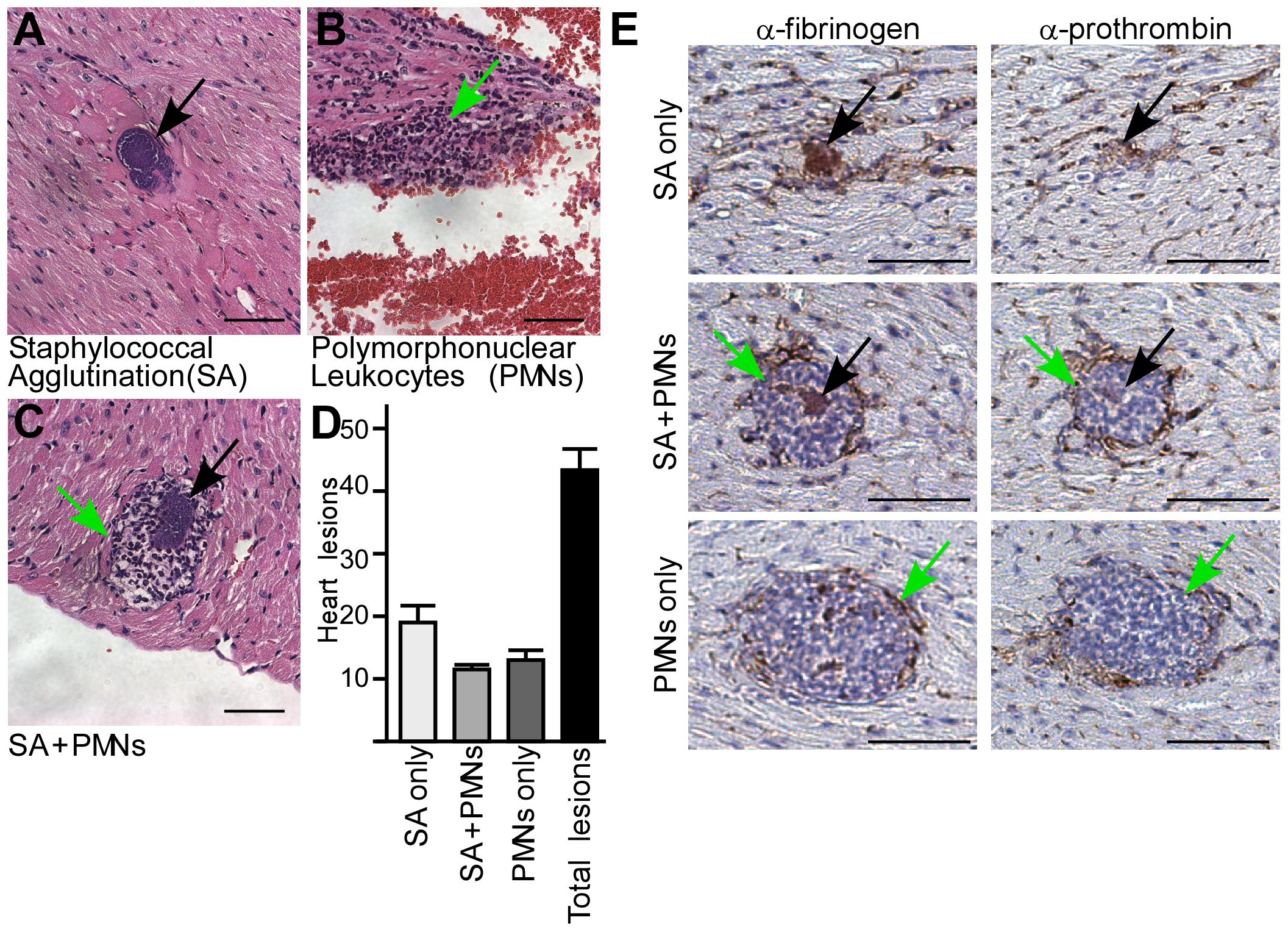 <i>Staphylococcus aureus</i> agglutination occurs during the pathogenesis of sepsis in mice.