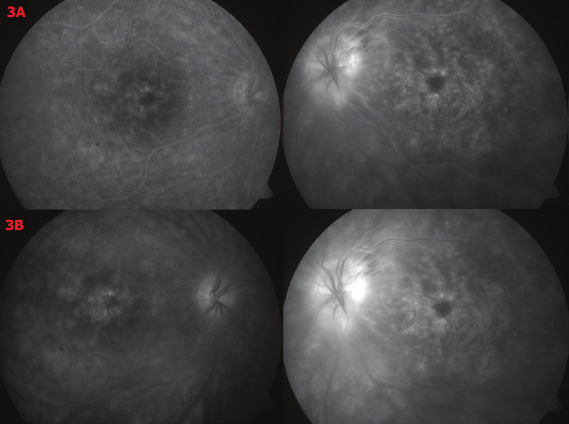Fluorescenční angiografie OPL – vstupní nález 3A – V makule OPL patrná hyperfluorescence v časných fázích 3B – s časem fluorescence narůstá a cystoidní prostory se naplňují a vytváří klasický petaloidní obraz V periferii sítnice nalézáme drobné defekty RPE bez prosakování. Nález svědčí pro CME bilaterálně, bez známek přítomnosti neovaskulární membrány. Na levém amblyopickém oku je výrazná hyperfluorescence celého zrakového terče s maximem temporálně a výrazné, stupňující se prosakování barviva, které zbarvuje i přilehlou sítnici. Drobné peripapilární hemoragie temporálně nahoře doplňují nález. Jde zřejmě o obraz ischemického edému terče