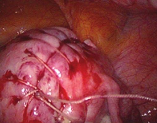 Obr. 5b. Výsledný efekt laparoskopické sutury po myomectomii.
