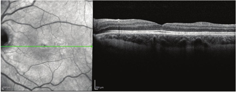 Pacient č. 2 Lineární horizontální transfoveolární OCT sken OL po PPV obnovení foveolární deprese
