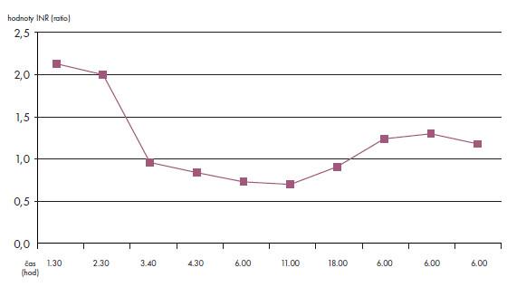 Hodnoty INR (ratio): rodička – kazuistika 2.