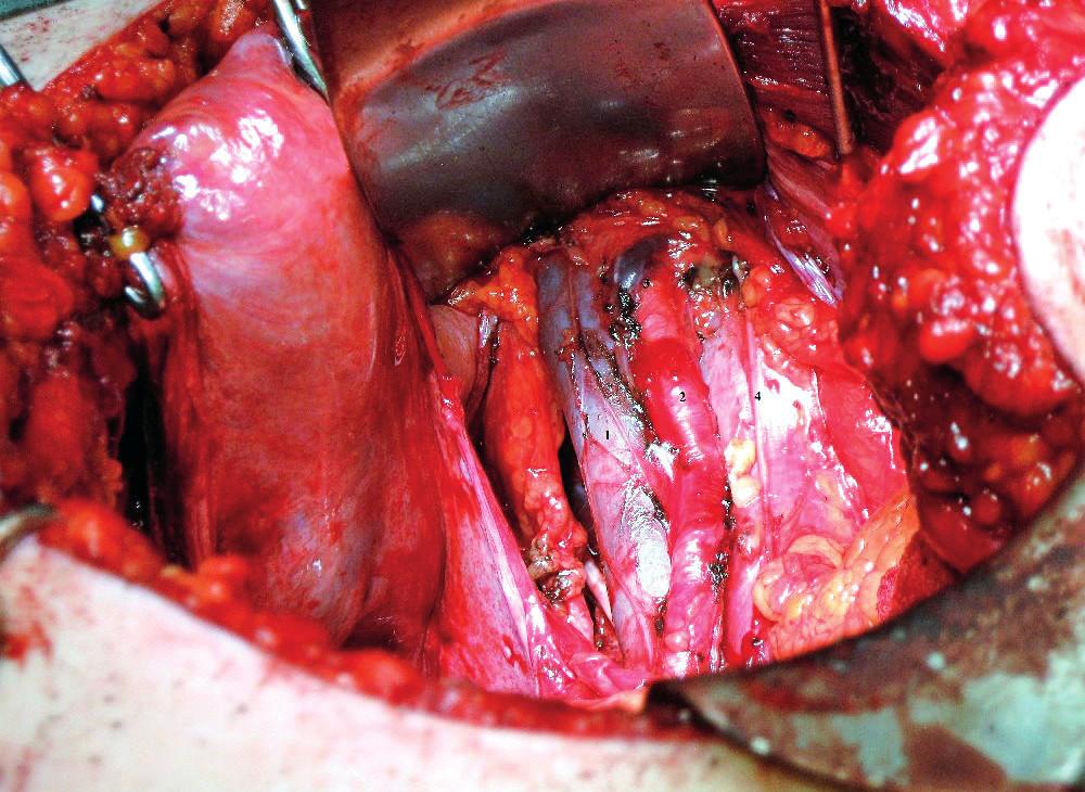 Distální hranice pánevní lymfadenektomie ve vztahu k externím ilickým cévám vpravo (veškerá fotodokumentace z archivu autora)