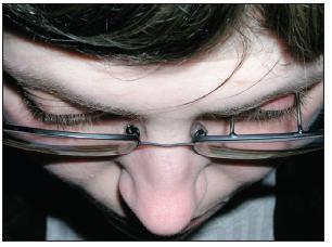 Foto ptózové podpěry upevněné na levou brýlovou obrubu – pohled shora