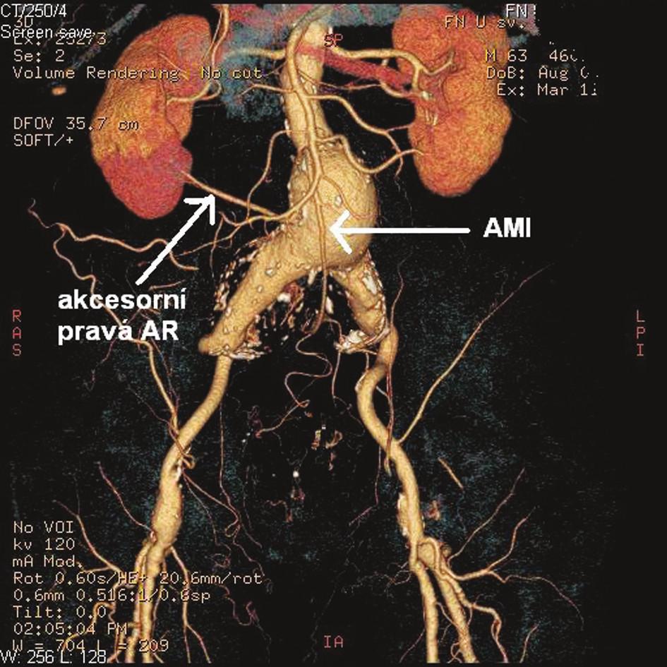 Předoperační CTA pacienta se zobrazením AMI a akcesorní pravé pólové renální tepny Fig. 1. Preoperative CT angiography of the patient which demonstrates the accessory right renal artery and inferior mesenteric artery