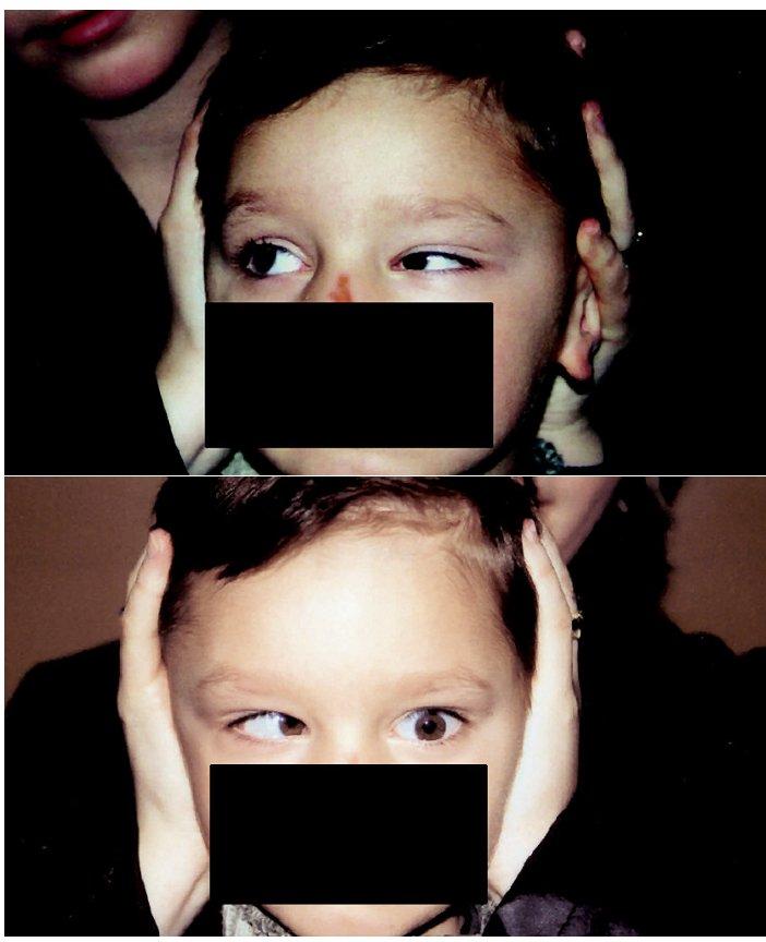 Duanův retrakční syndrom I levého oka, a – retrakce bulbu a zúžení oční štěrbiny, b – výrazně omezená abdukce