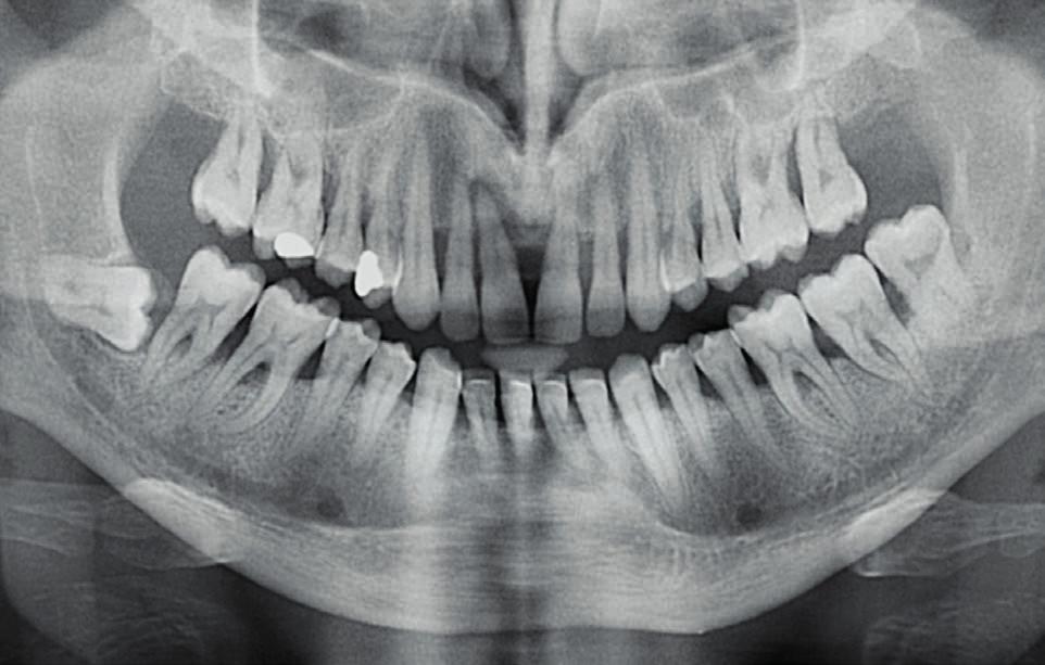 Obr. 3b OPG snímek 42letého muže s nedostatečně kompenzovaným diabetem 1. typu s velmi dobrou hygienou dutiny ústní. Generalizovaná parodontitis s rozsáhlou resorpcí alveolární kosti, s vertikálními kostními defekty a postižením furkací.