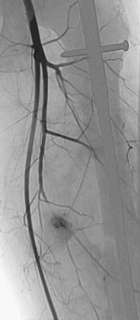 Angiografické zobrazení pseudoaneuryzmatu hluboké stehenní tepny – začátek plnění pseudoaneuryzmatu  Pic. 3. Angiography of a deep femoral artery pseudoaneurysm – filling of the pseudoaneurysm
