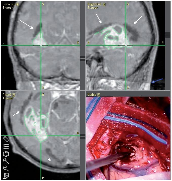 Snímek z neuronavigačního systému, pacient č. 2: černě DTI rekonstrukce optické radiace (bílé šipky), patrná je hranice traktografické datové sady, ta je správně registrovaná k anatomické T1 sadě (modrá šipka).