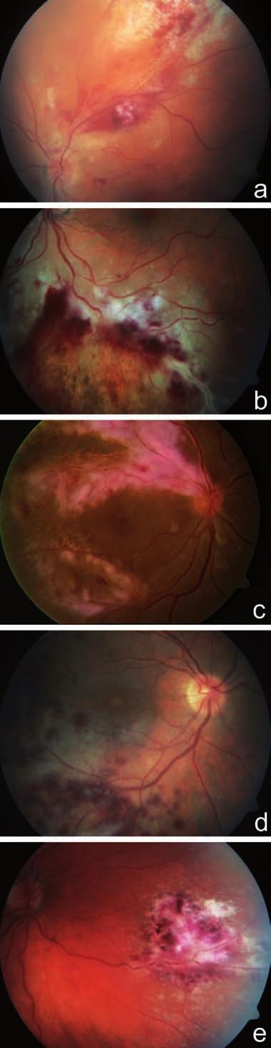 """Fulminantní forma CMV retinitidy. Fotografie fundu dokumentuje nález bělavých ložisek retinální infiltrace a nekrózy s krvácením (obraz """"kečupu a sýra"""") u 59letého pacienta po transplantaci kostní dřeně pro lymfom a), u 32letého pacienta po alogenní transplantaci kmenových krvetvorných buněk pro akutní myeloidní leukémii b), u 51letého pacienta s non-Hodgkinovym lymfomem c), u 32letého pacienta po alogenní transplantaci kmenových krvetvorných buněk pro akutní myeloidní leukémii d), u 31letého pacienta po 2 transplantacích kostní dřeně pro akutní myeloidní leukémii e)"""