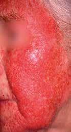 Diabetická rubeóza tváre