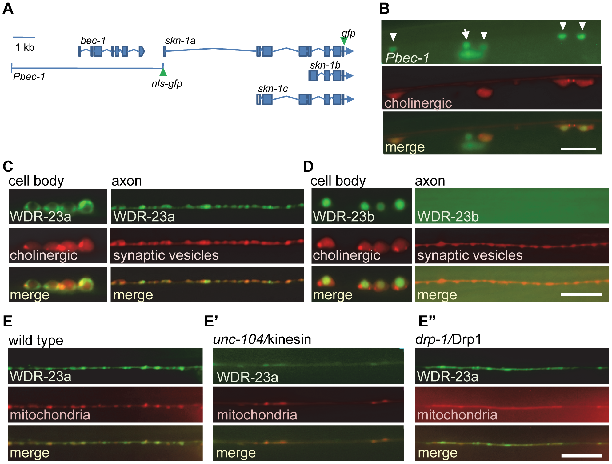 SKN-1 expression and WDR-23 sub-cellular localization in motor neurons.