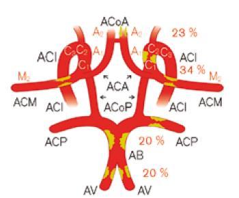 Schematické znázornění hlavních intrakraniálních tepen a jejich postižení aterosklerózou. Čísla udávají procentuální výskyt postižení příslušných tepen, u párových tepen oboustranné znázornění plátu znamená, že postižení obou tepen je relativně časté. Uvedená čísla podle [9]. Vysvětlivky zkratek v textu.