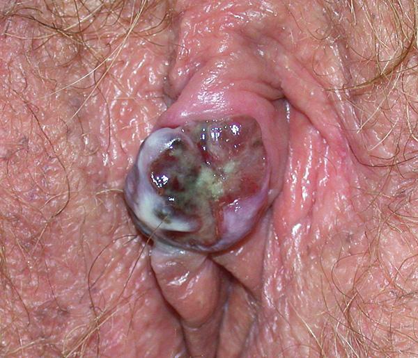 Obr. 1A  Klinický obraz melanomu klitoris