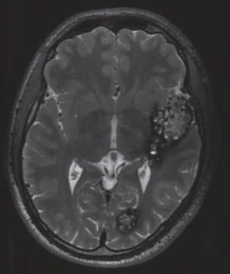 Typický MR obraz kavernomu v T2 váženém obraze.