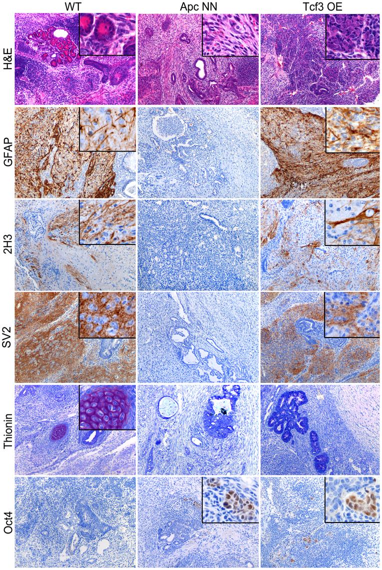 Rescue of <i>Tcf3</i> expression in <i>Apc</i>NN ESCs partially restores <i>in vivo</i> neural differentiation.