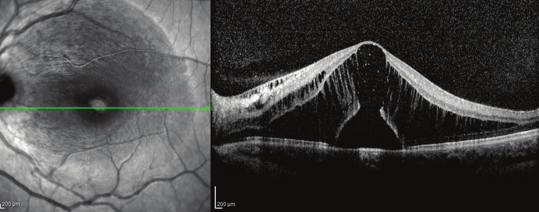 Obr. 6a Pacient č. 2 Lineární horizontální transfoveolární OCT sken OL před PPV, subfoveolárně kumulace subretinální tekutiny zeslabení sítnicových vrstev a vytvoření zevního lamelárního defektu, makulární retinoschíza vnitřní i zevní vrstvy sítnice.