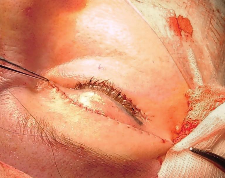Pokračovací sutura rány horního víčka