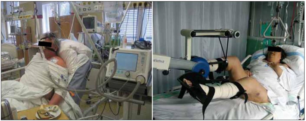 Obr. 2a, b. Stabilní průběh CHOPN může být u některých nemocných narušován atakami zhoršení klinického stavu (neboli akutními exacerbacemi). Během terapie exacerbací je často nutná hospitalizace na JIP. Pacient na JIP lůžku plicní kliniky s neinvazivní ventilační podporou (obr. 2A). Nemocná se stejnou základní diagnózou u pulmonální rehabilitace (obr. 2B) (foto autor a MUDr. Antušová).