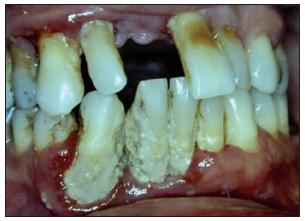 Pokročilá parodontitida u diabetiků (DM2T).
