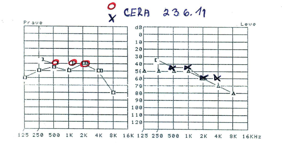Tonoaudiogram se zaznamenanou senzorineurální poruchou sluchu