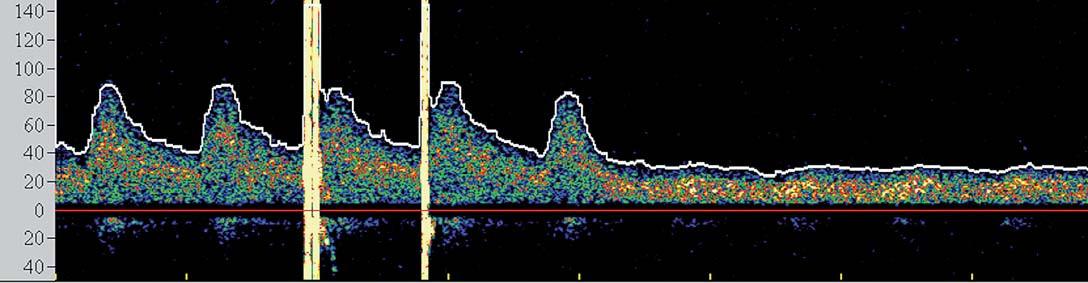 Spektrální křivka znázorňující pokles průtoku a ztrátu pulzatility ve střední cerebrální arterii po zavedení clampu.