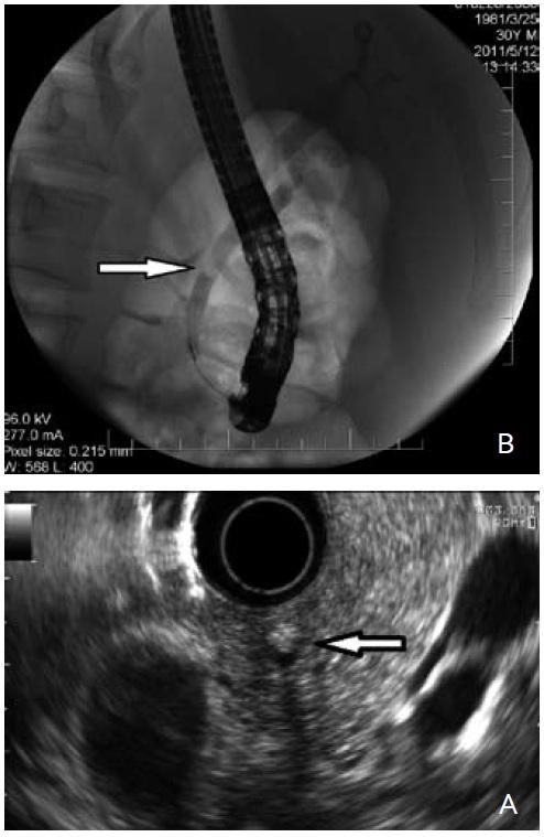 30letý muž přijatý pro akutní pankreatitidu biliární etiologie, na UZ břicha mnohočetná cholecystolitiáza, choledochus nebyl dilatován. Laboratorně celkový bilirubin 26 μmol/l, ALT 6,2 μkat/l, AST 2,9 μkat/l, GGT 5,2 μkat/l, ALP 5,2 μkat/l, pankreatická amyláza 16 μkat/l. Při endosonografii žlučových cest jsme nalezli hyperechogenitu s akustickým stínem 20 mm nad Vaterovou papilou (obr. 2A, šipka), při následném ERC P byla choledocholitiáza extrahována (obr. 2B, šipka). Fig. 2. 30-year old man admitted for acute biliary pancreatitis. Multiple cholecystolithiasis observed on abdominal ultrasound. Choledochus was not dilated. Laboratory tests revealed bilirubin 26 μmol/l, ALT 6.2 μkat/l, AST 2.9 μkat/l, GGT 5.2 μkat/l, ALP 5.2 μkat/l and pancreatic amylasis 16 μkat/l. During endosonography of the bile duct a small hyperechogenity with acoustic shadow was found 20 mm above the papilla vateri (fig. 2A, arrow). The choledocholithiasis was extracted during the subsequent ERCP (fig. 2B, arrow).