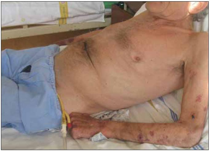 Kachexie provází zejména pokročilá stadia CHOPN, je spojena s vyšším rizikem úmrtí (na obrázku 65letý muž se soudkovitým hrudníkem při výrazné hyperinflaci plic, na horních končetinách je patrná atrofie svalů a na pokožce krvácení při dlouhodobé léčbě systémovými glukokortisteroidy) (foto autor).