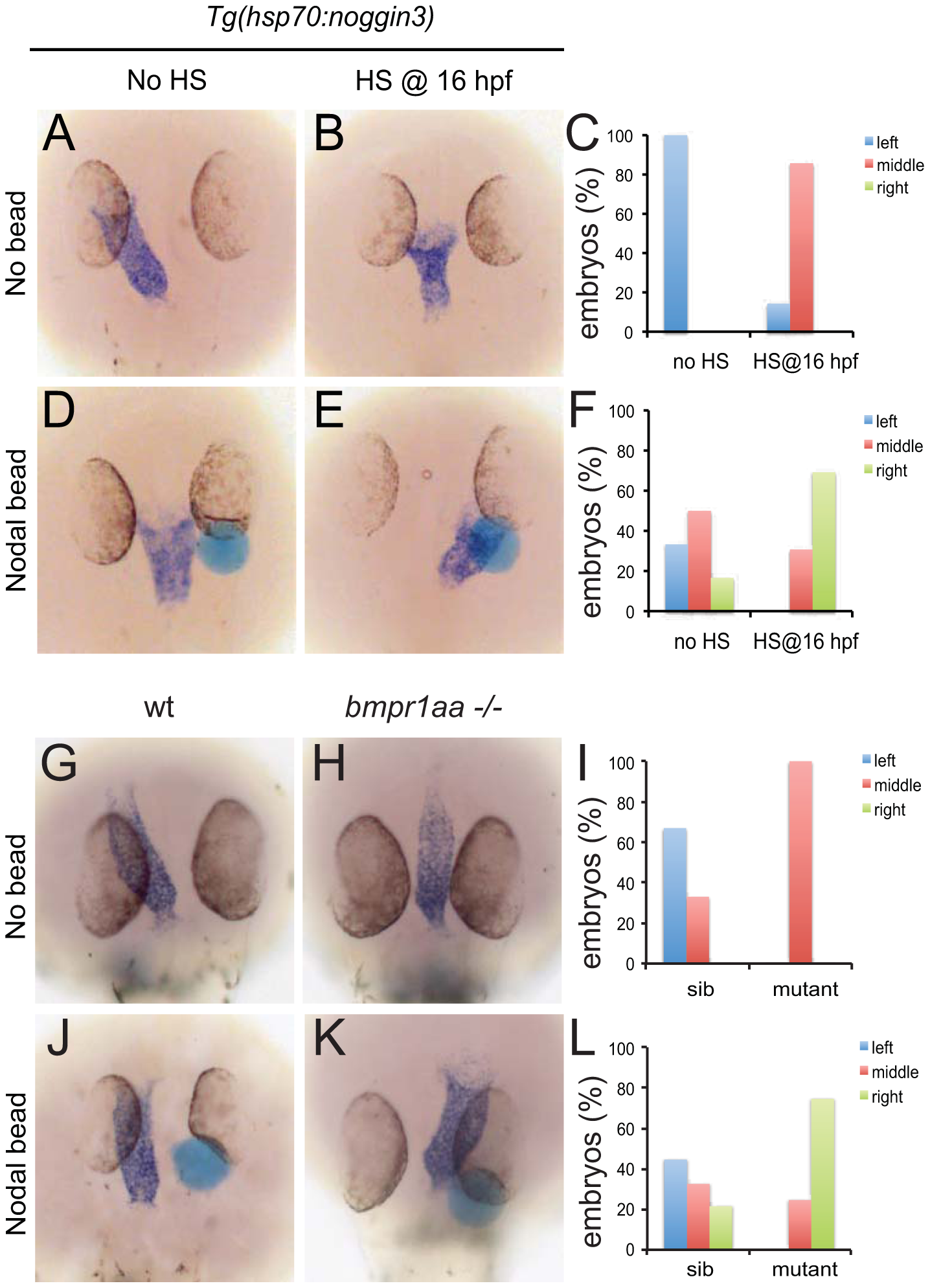 Rescue of Bmp-related cardiac laterality defects by Nodal beads.