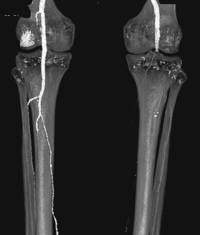 CTA obraz embolie do podkolenní tepny vpravo Fig. 14: CTA image embolism in the right popliteal artery