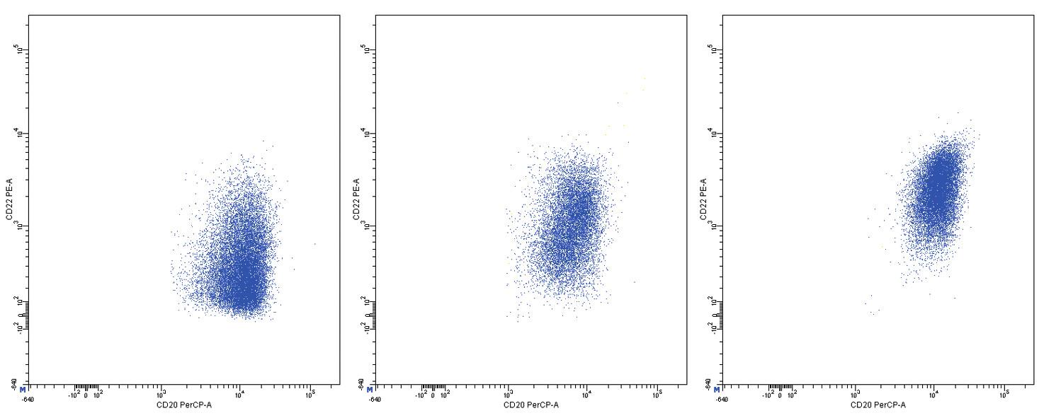 Variabilní exprese znaků CD20 a CD22, dvouparametrové dot plot diagramy, CD20 na vodorovné a CD22 na svislé ose, logaritmická škála exprese na obou osách