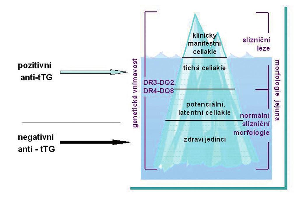 """Fenomén ledovce. Klinická manifestace celiakie. Celiakie má mnoho forem. Klasická celiakie s průjmy je nyní méně častá než formy mimostřevní (""""atypické""""). Jen část pacientů (vrchol ledovce) byla dříve diagnostikována na základě klinické symptomatologie."""
