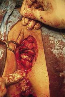 Radikální excize tumoru – sutura močového měchýře