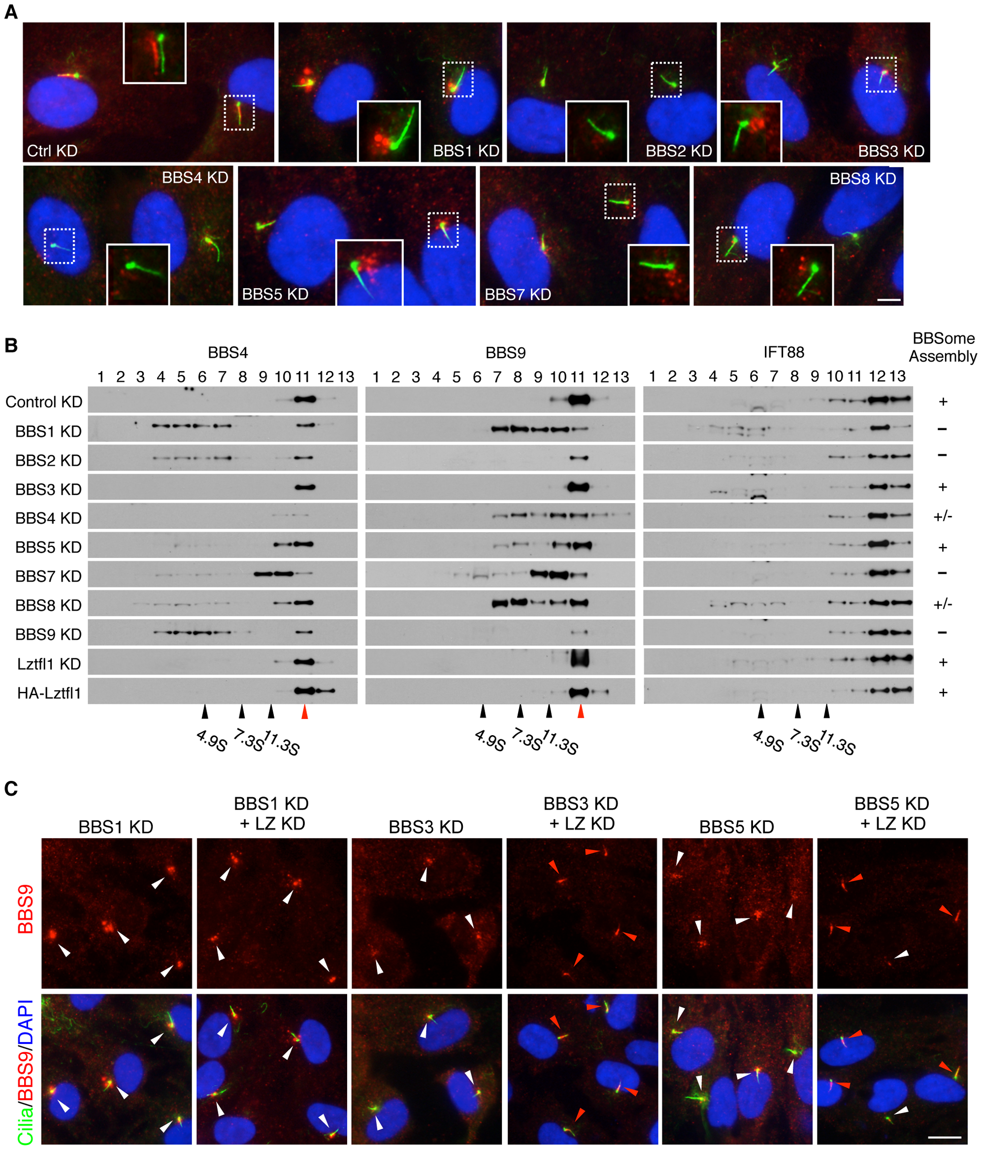 Reduction of LZTFL1 activity restores BBSome ciliary trafficking in BBS3 and BBS5 depleted cells.