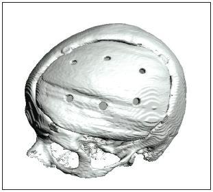 3D CT kontrola po operaci.