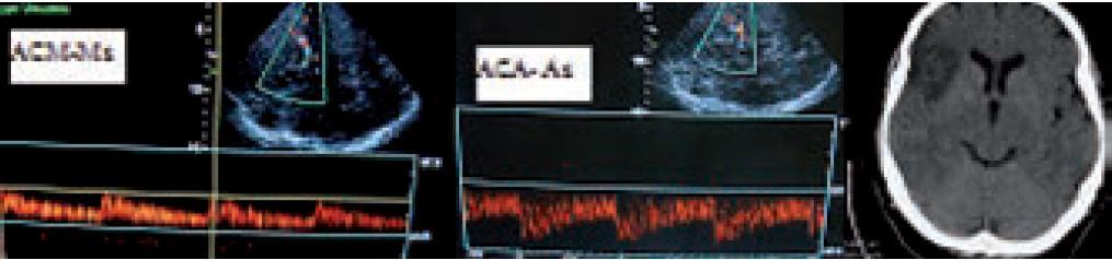 Demonstrace <i>flowdiversion</i> jako nepřímé známky okluze v distálním větvení ACM, kdy dojde k převrácení rychlostí toků. V ACM M1 před distální okluzí je tok snížen (TIBI 3) a v A1 (s M1 společně odstupující větev z terminální ACI) dojde k akceleraci toků, které jsou za normálních okolností nižší než v M1. Na CT snímku je patrný infarkt touto okluzí způsobený.
