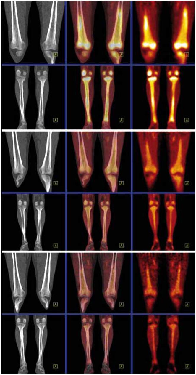 """Srovnání akumulace fluorodeoxyglukózy při PET-CT vyšetření před léčbou, v průběhu léčby a po ukončení léčby. PET-CT dolních končetin opět u studií 8/2009, 4/2010, 8/2010. CT v režimu """"low dose CT, kostní okno"""", PET v barevné škále """"Hot Body"""", koronální řezy. Opět i zde je pokles metabolické aktivity ve skeletu dolních končetin."""