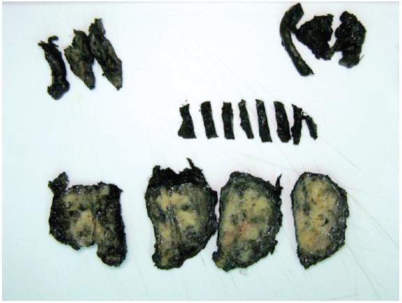Materiál z radikální prostatektomie připraven ke kompletnímu zabločkování  Fig. 2. Tissue from radical prostatectomy prepared for complete embedding