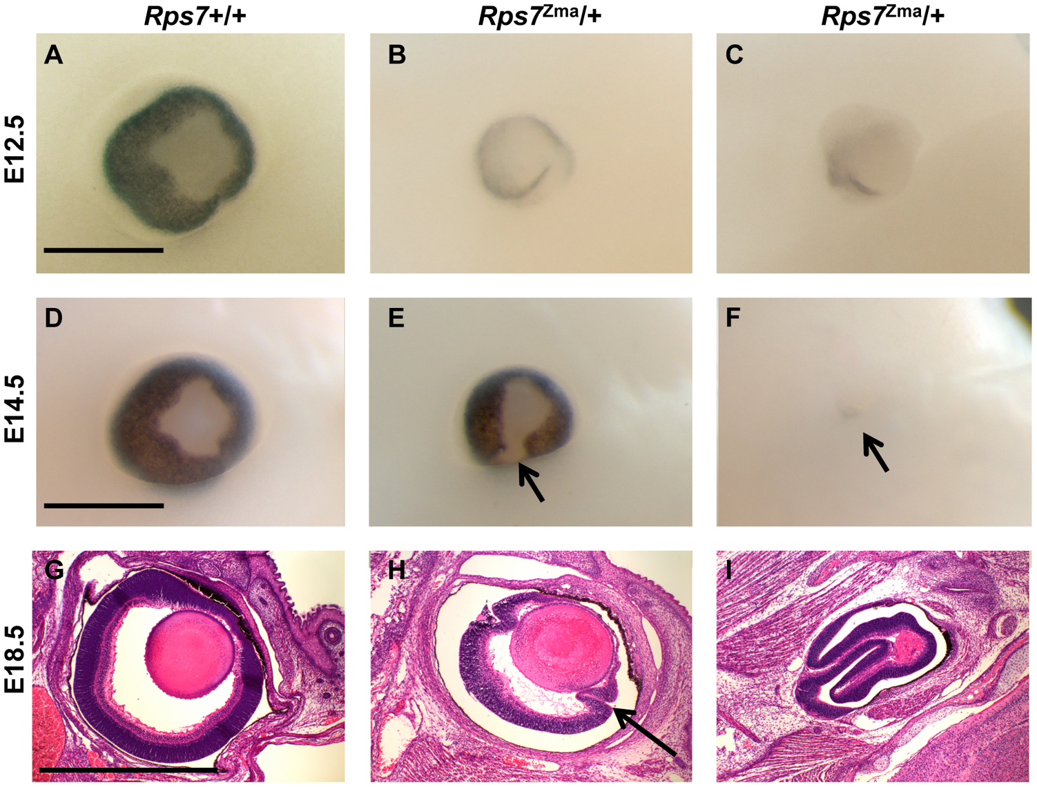 Eye dysmorphology in <i>Rps7</i> mutants.