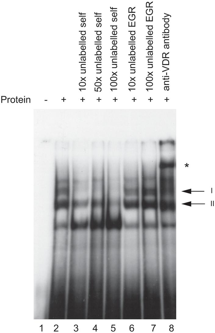 In vitro binding of VDR protein to the <i>HLA-DRB1*15</i> VDRE.