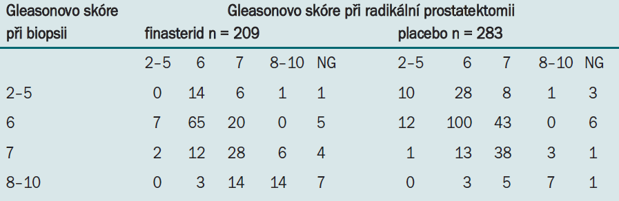 Souvislost mezi grade karcinomu při biopsii a při prostatektomii.