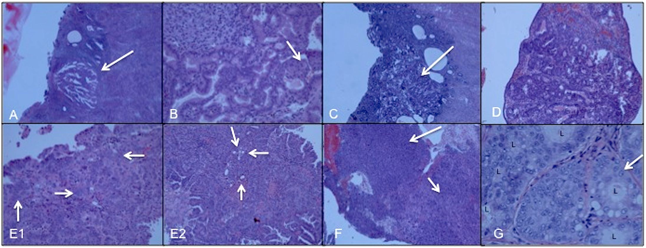 Microscopic views of hematoxylin-eosin stained sections of all seven uterine cancer specimens diagnosed by classic histopathology.