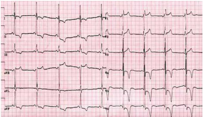 Elektrokardiogram mladého nemocného s Fabryho chorobou demontrující zkrácení PQ intervalu a voltážová kritéria hypertrofie levé komory doprovázená výraznými repolarizačními změnami.