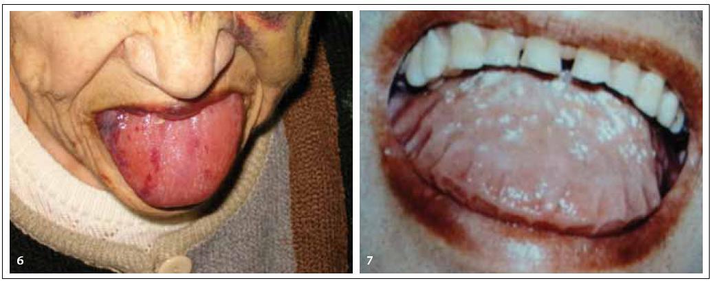 Obr. 6 a 7. Na jazyku můžeme u AL‑ amyloidózy někdy vidět krvácivé projevy, jindy dochází ke zbytnění jazyka na základě depozit amyloidu ve tkáni jazyka. Otisky zubů na krajích jazyka jsou typickou známkou makroglosie. V diferenciální diagnóze makroglosie připadá v úvahu akromegalie nebo AL- amyloidóza.