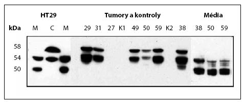 Western Blot, stanovení CA IX v kultivačním médiu nebo buněčném extraktu RCC a kontrolních tkání  Fig. 2. Western blot analysis of CA IX in culture media or in extracts from cells, tumours and control tissues
