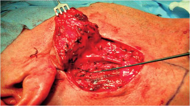 Operačný nález – viacuzlová recidíva disekovaná spolu s kožou, retrográdna identifikácia ramus marginalis pomocou neuromonitoringu (NIM neuro 3 fi Medtronic).