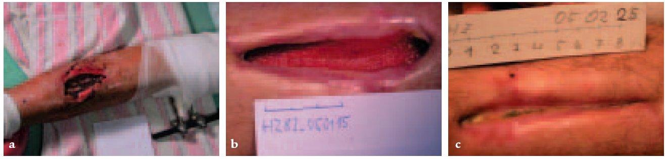 a, b, c. Traumatická ulcerace s poškozeným cévním a nervovým zásobením.